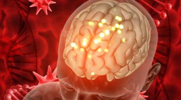 glutine-cervello
